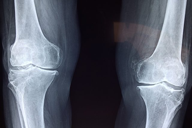 Top 5 Knee Injury Prevention Tips for Snowmobiling: Don't Blow It